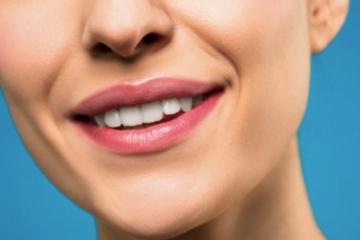 Ce trebuie să ştii despre albirea dentară înainte de a te adresa unei clinici specializate?